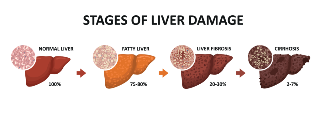 COVID isn't the Only Pandemic! Is Your Liver at Risk?
